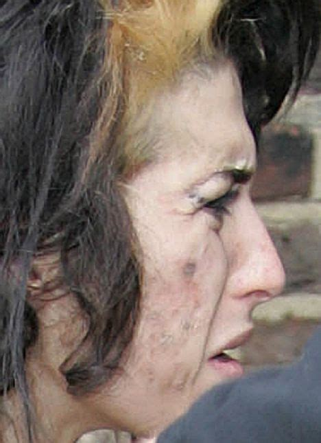 The 24-Year-Old Celebrity With The Ravaged Skin - Amy