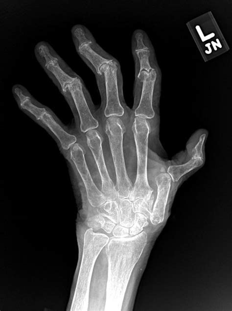 303 best Radiology for Clinicians images on Pinterest