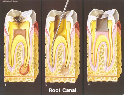Root Canal - H & H Dental